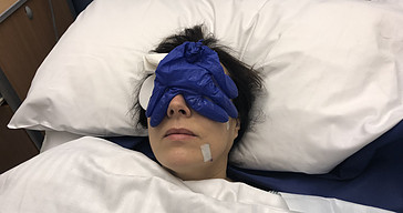 Upper Eyelid Surgery – My Recovery Photos