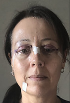 Upper Eyelid Surgery Recovery Photos